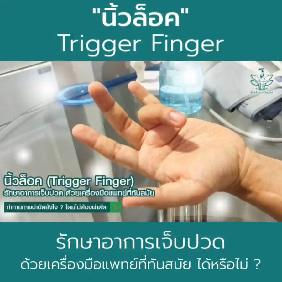 Trigger-Finger นิ้วล็อค